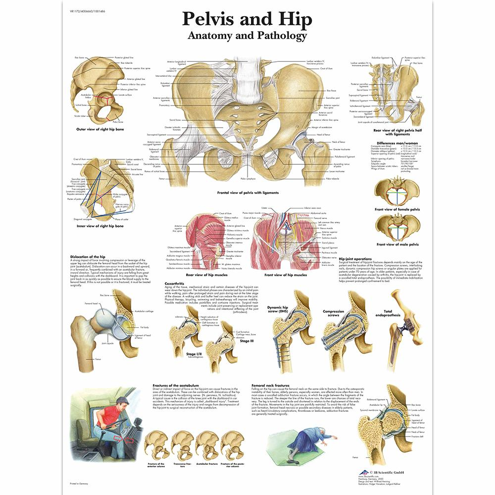 Pelvis and Hip Chart Laminated Chart 20