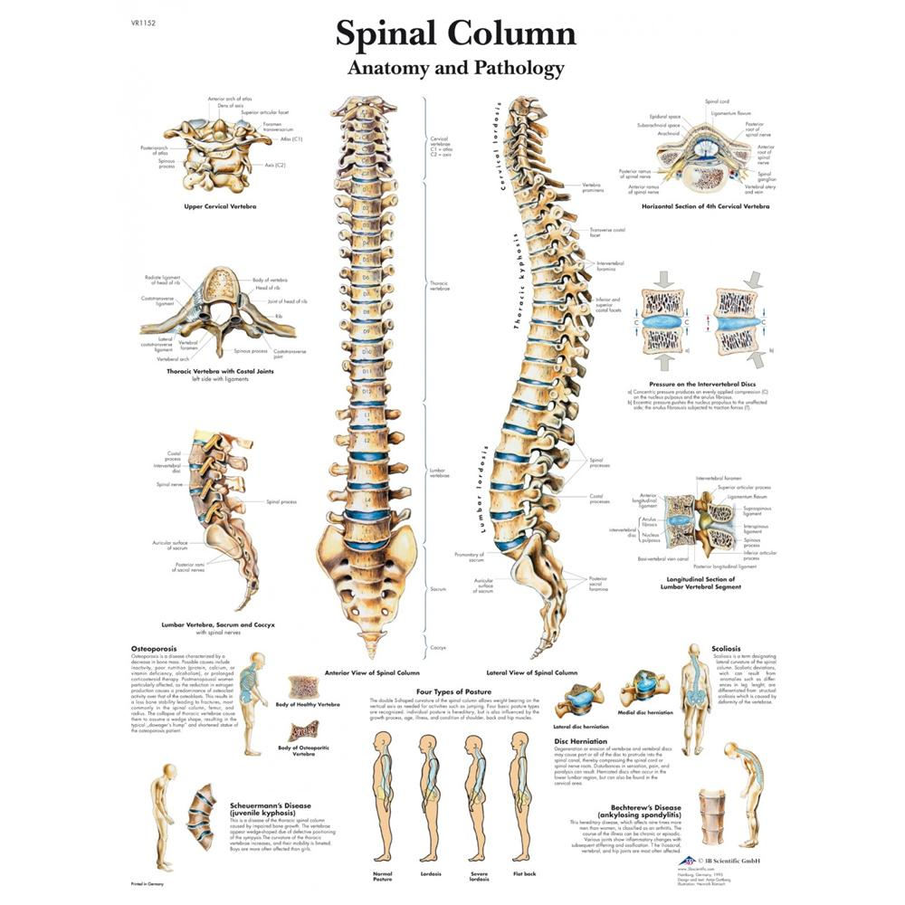 Spinal Column Laminated Chart 20